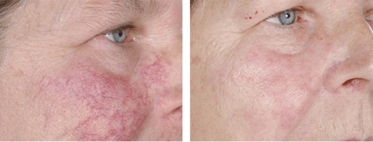 Facial Thread Veins Removal Glasgow