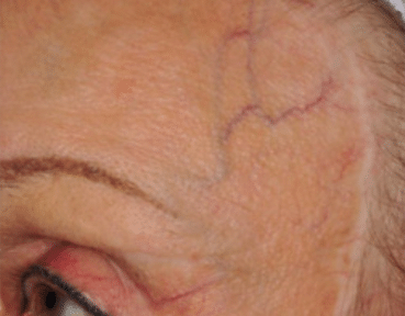 Facial Thread Vein Removal Aberdeen Before Image