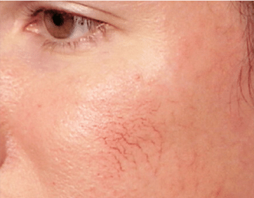 Facial Thread Veins Removal Scotland Before Image