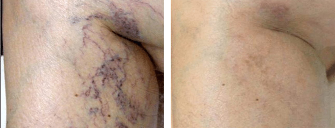 Leg Thread Veins Removal Glasgow