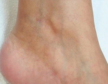 Leg Thread Veins Removal Glasgow After Image