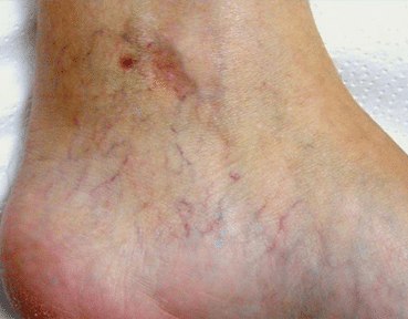 Leg Thread Veins Removal Glasgow Before Image