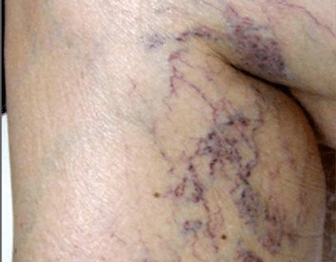 Leg Thread Veins Removal Scotland Before Image