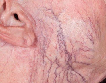 Thread Veins Removal Glasgow Before Image