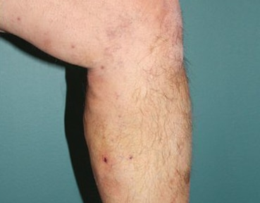 Varicose Veins - Before Image