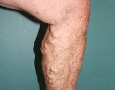 Varicose Veins - After Image