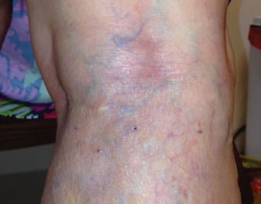 Varicose Veins Glasgow - After Image
