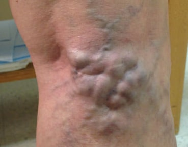 Varicose Veins Glasgow - Before Image
