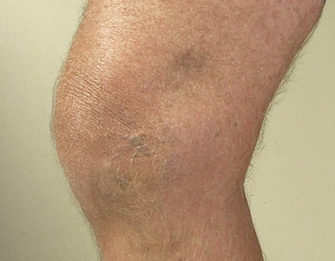 Varicose Veins Edinburgh - After Image