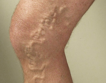 Varicose Veins Edinburgh - Before Image