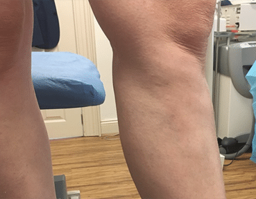 Varicose Veins Aberdeen - After Image