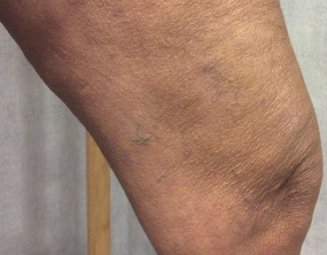Varicose Veins Dundee - After Image