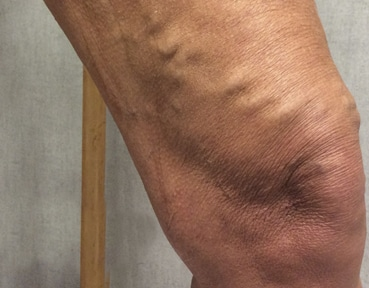 Varicose Veins Dundee - Before Image