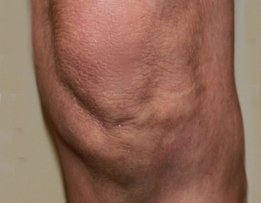 Varicose Veins Inverness - After Image