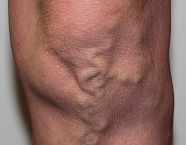 Varicose Veins Inverness - Before Image