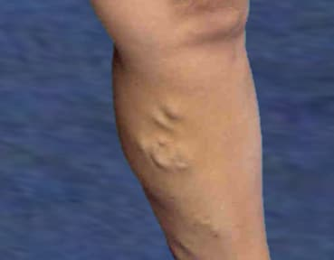 Varicose Veins Scotland - Before Image