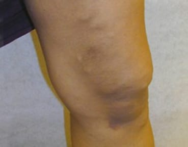 Varicose Veins Scotland - After Image