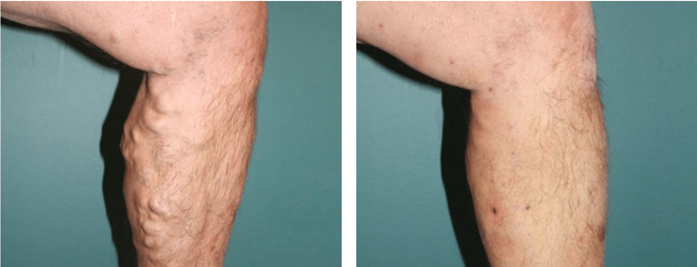 Varicose Vein Treatment Scotland